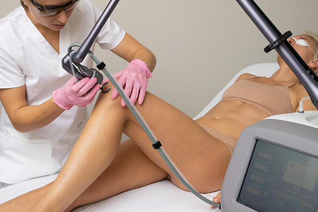 Adonyss CarbonFrax CO2 Fractional Laser
