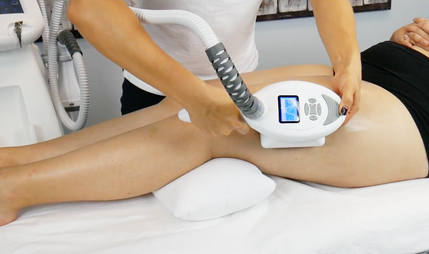 Lipomassage for Body Sculpting with Endermologie Machines